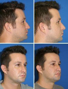 Rhinoplasty (Nose Job) - Photo before - M.D., F.A.C.S. Bernard A. Shuster