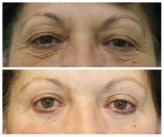 Eyelid surgery (Blepharoplasty) - Photo before - Doc. MUDr. Ondřej Měšťák Ph.D.