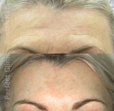 Forehead lift  (Brow lift) - Photo before - Perfect Clinic - centrum estetické medicíny