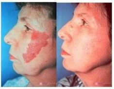 Spider veins laser removal (redness, birh marks) - Photo before - Mediestetik, skupina klinik