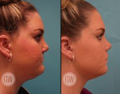 Chin Surgery - Photo before - Dr. Guy Watts