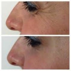 Hyaluronic acid-based wrinkle fillers - Photo before - Eveclinic Bratislava