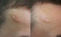ARS ESTETICA – Klinika Medycyny Estetycznej i Laseroterapii - Photo before - ARS ESTETICA – Klinika Medycyny Estetycznej i Laseroterapii