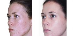 Chemical peeling - Photo before - Brandeis Clinic by Lucie Kalinová