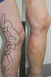 Varicose veins laser treatment - Photo before - ARS ESTETICA – Klinika Medycyny Estetycznej i Laseroterapii