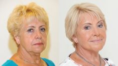 Dermal fillers - Photo before - YES VISAGE Aesthetic medicine and plastic surgery clinic