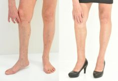 Varicose veins treatment - Photo before - YES VISAGE Aesthetic medicine and plastic surgery clinic