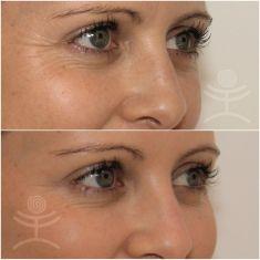 Laser procedures in aesthetic dermatology - Photo before - Mediestetik, skupina klinik