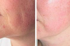 Radiofrequency Rejuvenation (Aluma, accent, TriPollar, Spa RF device, Re-Age) - Photo before
