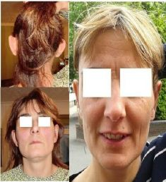 Ear surgery (Otoplasty) - Photo before - ClinicForYou