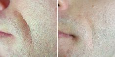Radiofrequency Rejuvenation (Aluma, accent, TriPollar, Spa RF device, Re-Age) - Photo before - Brandeis Clinic by Lucie Kalinová