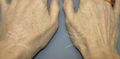 Dermal fillers - Photo before - Mediestetik, skupina klinik