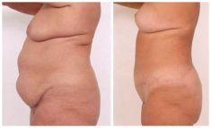 Abdominoplasty (Tummy Tucks) - Photo before - Mandala Beauty Clinic