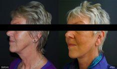 Facelift - Photo before - BareAesthetics Cosmetic Surgery Clinics