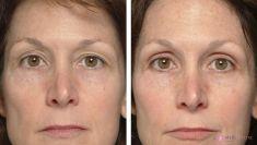 Thermage Skin Tightening - Photo before - Mediestetik, skupina klinik