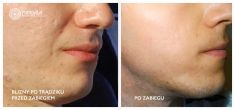 Laser acne treatment - Photo before - Mandala Beauty Clinic