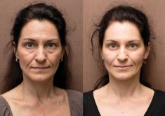 Hyaluronic acid-based wrinkle fillers - Photo before - Perfect Clinic - centrum estetické medicíny