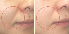 Mesotherapy (face, neck revitalization) - Photo before