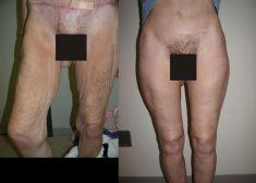 Thigh Lift Surgery - Photo before