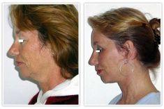Facelift - Photo before - Prof. dr hab.  Piotr Wójcicki