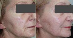 Laser procedures in aesthetic dermatology - Photo before