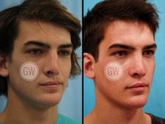 Dr. Guy Watts - Photo before - Dr. Guy Watts