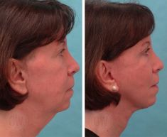 Facelift - Photo before - Dr. Guy Watts