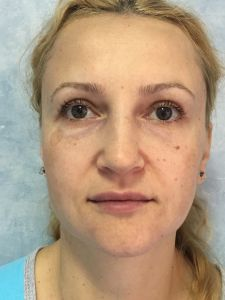 Fat (lipofiling) - Photo before - Dr. Ana Luminita Banacu