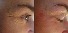 Microdermabrasion - Photo before