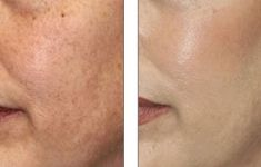 Chemical peeling - Photo before - YES VISAGE Aesthetic medicine and plastic surgery clinic
