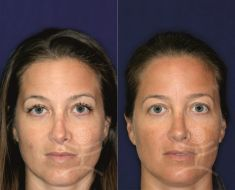 Non-Surgical Nose Job - Photo before - Mediestetik, skupina klinik