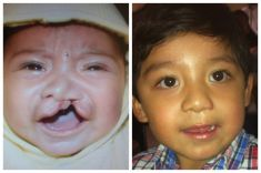 Cleft palate surgery (palatorrhaphy) - Photo before