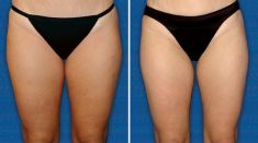 Liposuction alternative – non-invasive fat and cellulite removal - Photo before - Artisan Cosmetic Surgery