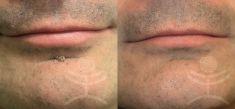 Laser skin tag removal - Photo before - Mediestetik, skupina klinik