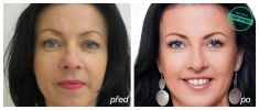 Eyelid surgery (Blepharoplasty) - Photo before - MUDr. Miloš Križko