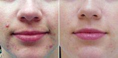 Acne Treatment - Photo before - Brandeis Clinic by Lucie Kalinová