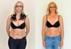 Abdominoplasty (Tummy Tucks) - Photo before - YES VISAGE Aesthetic medicine and plastic surgery clinic