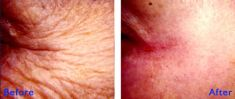 Botulinum toxin - Wrinkle Removal - Photo before - Azim Jahangir Khan M.D.