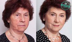 Fotorejuvenation  - Photo before - Brandeis Clinic by Lucie Kalinová