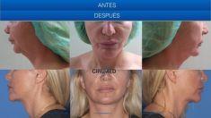 Cirumed Clinic - Photo before - Cirumed Clinic