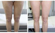 Liposuction alternative – non-invasive fat and cellulite removal - Photo before - ARS ESTETICA – Klinika Medycyny Estetycznej i Laseroterapii