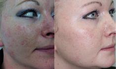 Spider veins laser removal (redness, birh marks) - Photo before - ARS ESTETICA – Klinika Medycyny Estetycznej i Laseroterapii