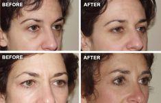 Eyelid surgery (Blepharoplasty) - Photo before - Anthony Geroulis M.D.