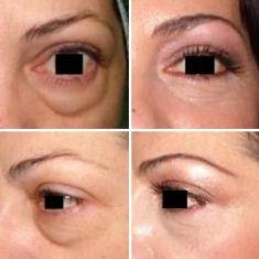 Eye Bags Treatment - Photo before