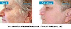 Regeneris – biostimulation of skin cells - Photo before