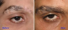 Eyebrow transplantation - Photo before