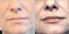 Hyaluronic acid-based wrinkle fillers - Photo before - Brandeis Clinic by Lucie Kalinová