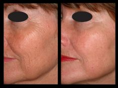 Fractional Laser Resurfacing - Photo before - Brandeis Clinic by Lucie Kalinová