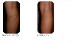 Varicose veins laser treatment - Photo before - Mandala Beauty Clinic