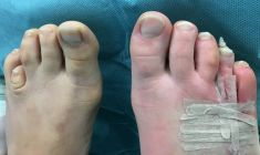 Aesthetic foot and ankle surgery - Photo before - Adem Erdogan M.D.